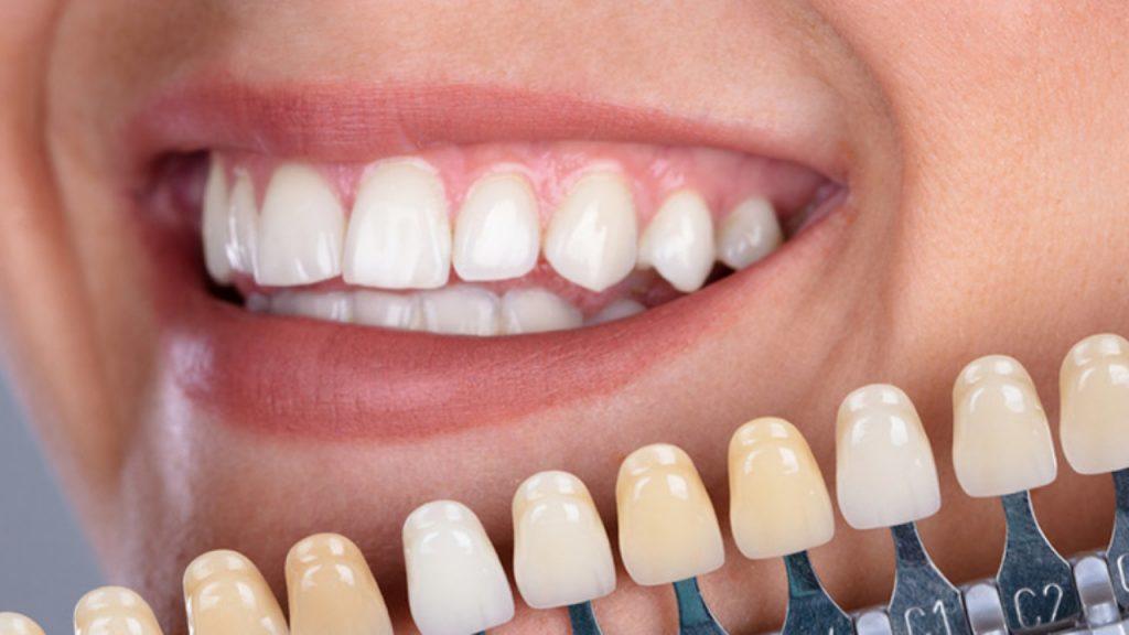 Carillas-estéticas-dentales